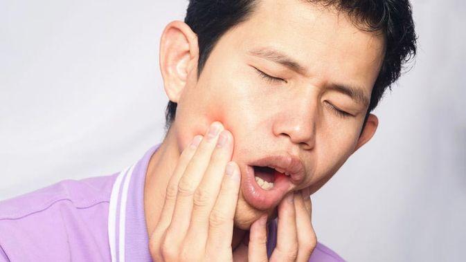 Mari Sepakati Bersama Bahwa Gigi Berlubang Adalah Penyakit Paling Merepotkan
